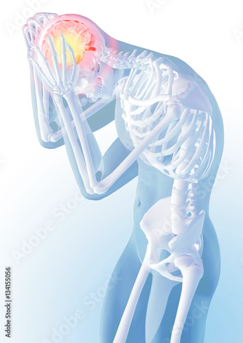 Concept of head pain  Transparency of the skeleton and body
