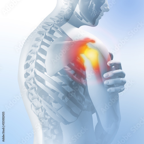 Concept of shoulder pain  Transparency of the skeleton and