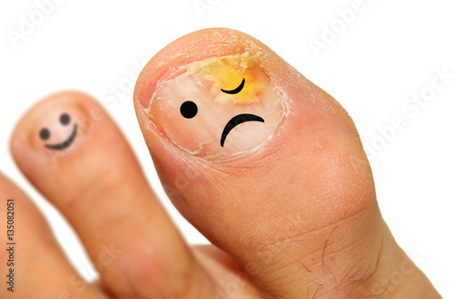 Fotografia Onychomycosis fungal infection of the nail