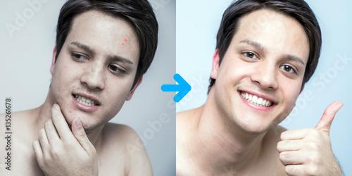 men's pimple treatment before after image, acne treatment, men's skin care