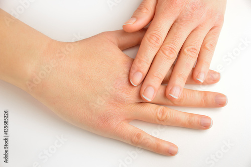 Staande foto Manicure hands touching with dry skin