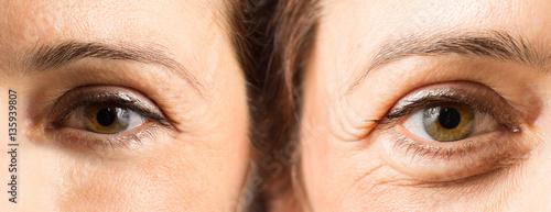 Fotografie, Obraz  Trattamento anti età al viso