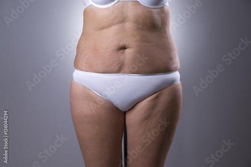 Fotografia, Obraz  Flabby woman's belly with stretch marks