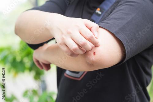 Fototapeta Health problem. Closeup asian woman scratching her itchy elbow w obraz na płótnie
