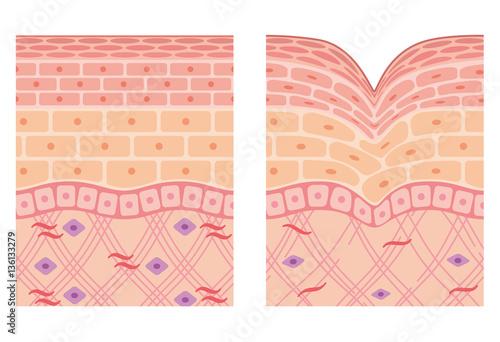 Valokuva  しわ 皮膚の構造 断面図