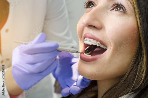 Stampa su Tela  Closeup of beautiful girl on dental braces check up