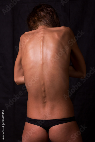 Part of woman body suffering anorexia nervosa Wallpaper Mural