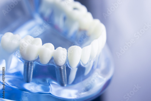 Fotografie, Obraz  Dental teeth dentistry model