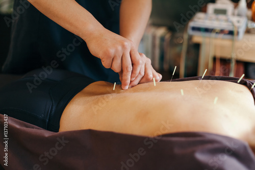 Photo Acupuncture session in Japanese medical study