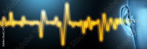 Foto  Tinnitus, medical illustration, sound waves, artwork