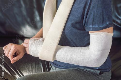 Fotografía  Arm in plaster - Braccio ingessato
