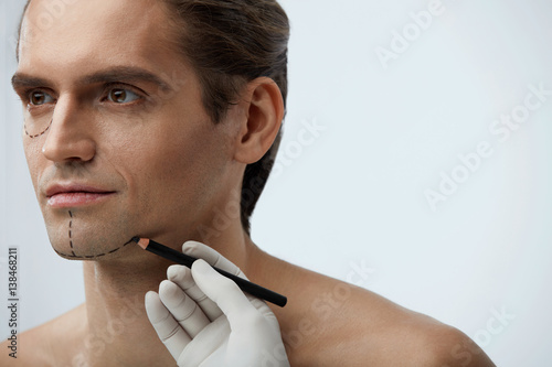 Fotografía  Facial Beauty Operation. Handsome Man With Lines On Face