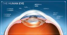 Human Eye With Artifical Lens, Medical Illustration