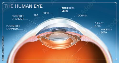 Fotografía  Human eye with artifical lens, medical illustration