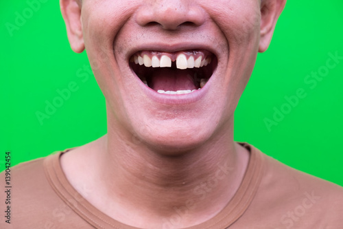 Fotografie, Obraz  Asian man smiling showing his teeth unattractive on green background