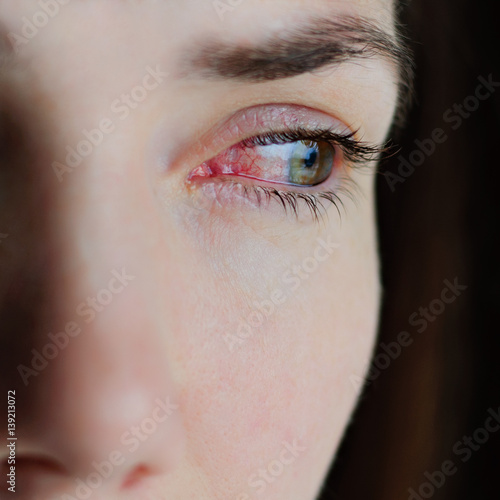 Closeup of irritated or infected red bloodshot eyes - conjunctivitis Canvas Print