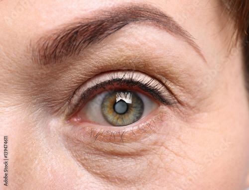 Fotomural Cataract concept. Senior woman's eye, closeup