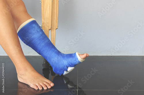 Fotografia broken leg in a plaster cast with soft-focus in the background
