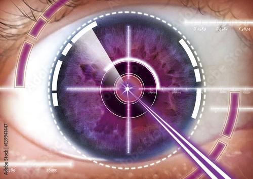 Papiers peints Con. ancienne Augen lasern, Operation