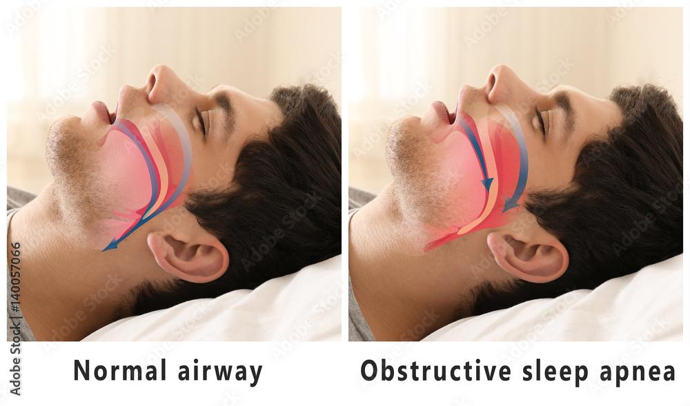 Fototapeta Snore problem concept. Illustration of normal airway and obstructive sleep apnea