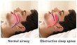 canvas print picture - Snore problem concept. Illustration of normal airway and obstructive sleep apnea