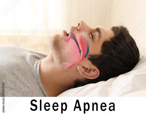 Snore problem concept. Illustration of obstructive sleep apnea Canvas Print