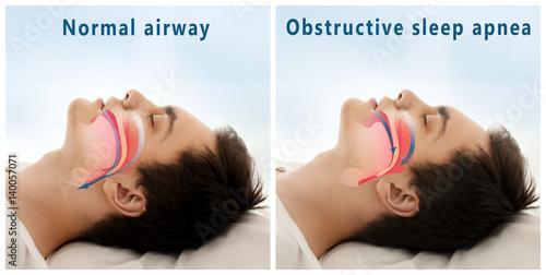 Snore problem concept Canvas Print