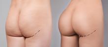 Closeup View Of Female Buttock...
