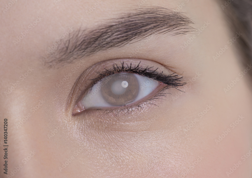 Valokuva Eye of a woman with cataract and corneal opacity