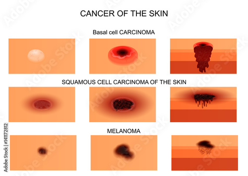 types of skin cancer.