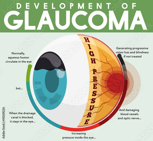 Fotografía  Infographic with Development of Untreated Glaucoma Disease, Vector Illustration