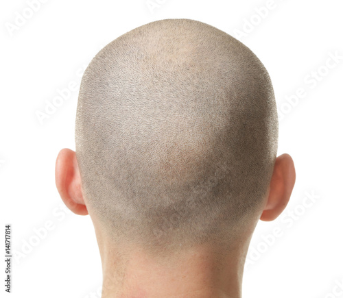 Hair loss concept. Head of man on white background, closeup Wall mural