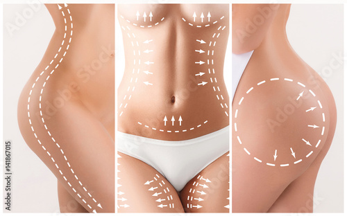 Fotografía The cellulite removal plan. White markings on young woman body
