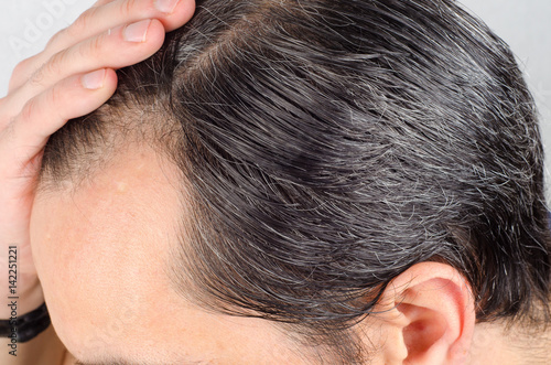 Mature man hair loss problem Tapéta, Fotótapéta