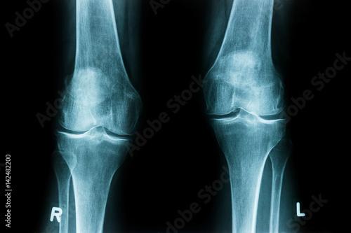 X-Ray Film of human Knee – kaufen Sie dieses Foto und finden Sie ...