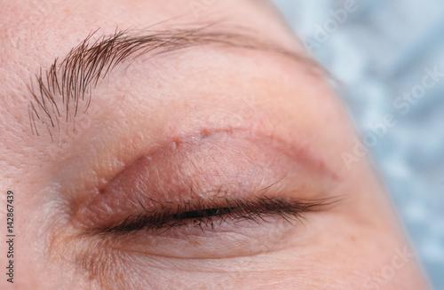 Blepharoplasty of the upper eyelid. Canvas Print