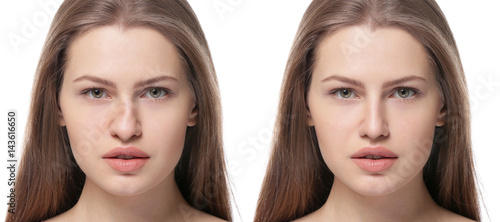 Young woman before and after rhinoplasty on white background