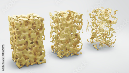 Fotomural  Bone structure 3d illustration, normal and with osteoporosis