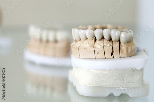 Obraz na plátne  Zirconium Porcelain Tooth plate in Dentist Store