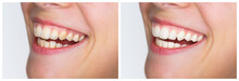 Whitening And Straightening - Dental Care, A Beautiful Smile And Teeth Whitening And  Straightening Treatment Before And After. Horizontal