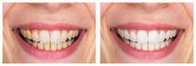 Whitening - Dental Care, A Bea...