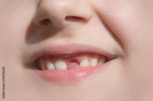 Child's smile without anterior front tooth Poster