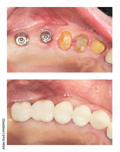 Fotografie, Tablou  before and after  : implants and crowns