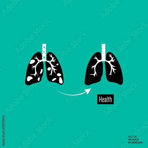 Lungs human body. Disease of the lungs. Anatomy of Medicine Canvas Print