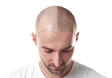 Hair Loss Concept. Head Of Man...
