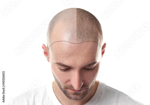 Valokuva  Hair loss concept. Head of man on white background, closeup