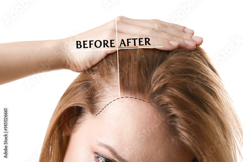 Photo Woman before and after hair loss treatment on white background