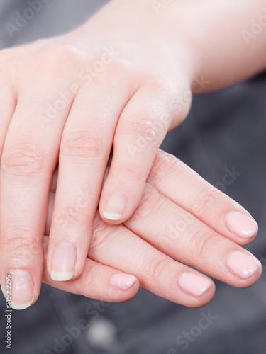 Aluminium Prints Manicure Woman presents hands nails.