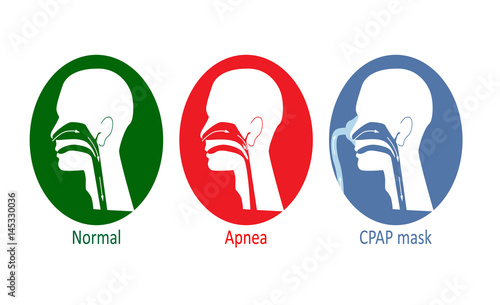 Photo Vector illustration of normal breathing, with apnea disease and with CPAP mask