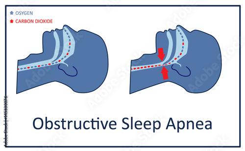 Vector illustration of obstructive sleep apnea. Wallpaper Mural